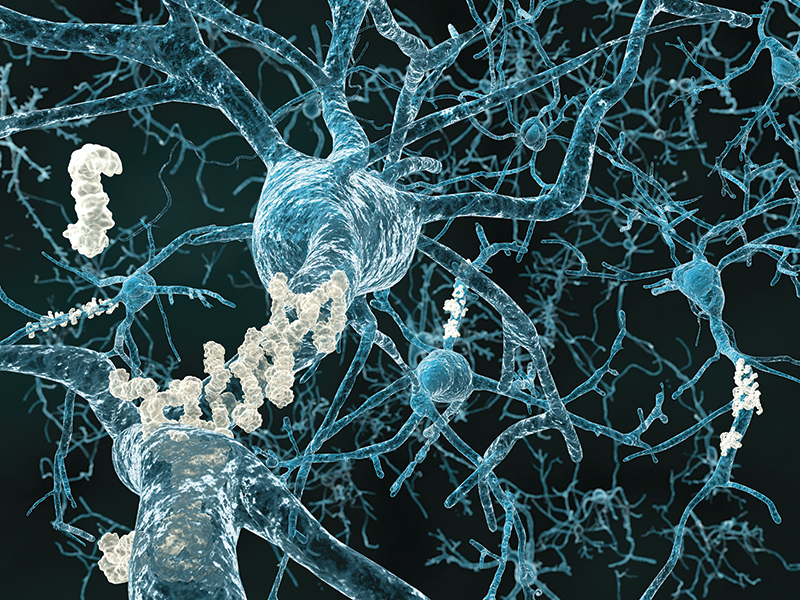 The brains of Alzheimer's patients often reveal two phenomena: plaques and tangles. Here amyloid plaques attach to neurons within the brain.